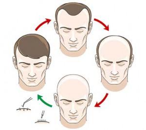 Was ist FUE Haartransplantation?